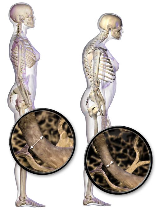 Corpo sem e com Osteoporose