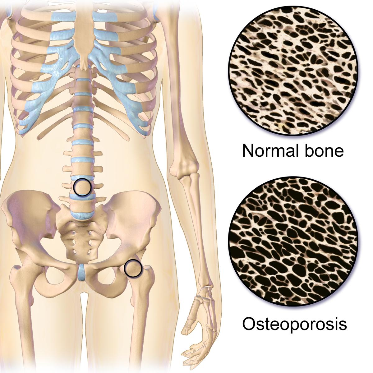 Osteoporose, localizações