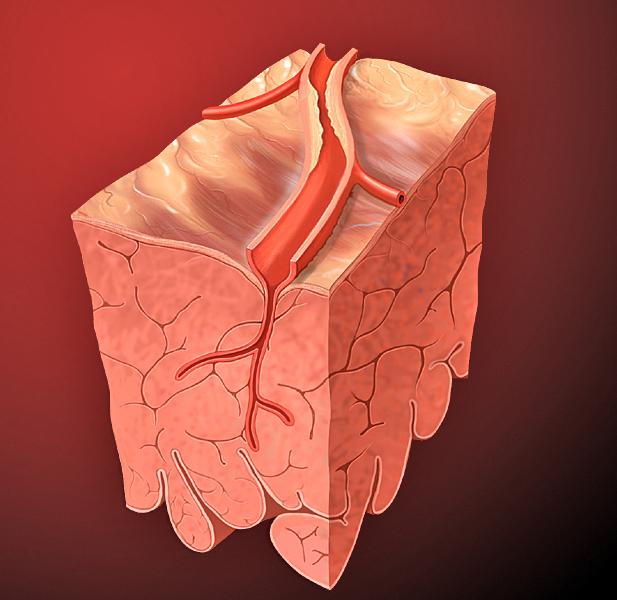 Lesão arterial pelo colesterol